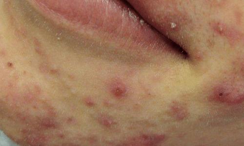 acne-treatment-groot
