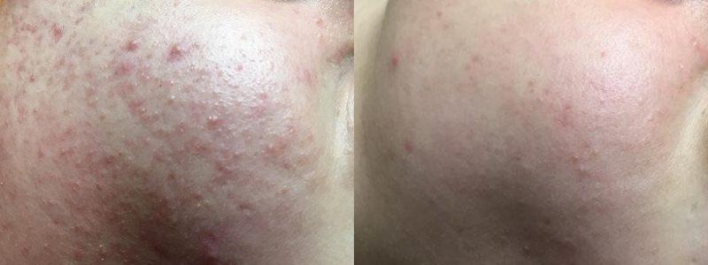 acne-voor-en-na-kuurbehandeling
