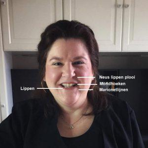 foto voor hyaluronpen indicaties