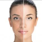 Hyperpigmentatie behandeling medex